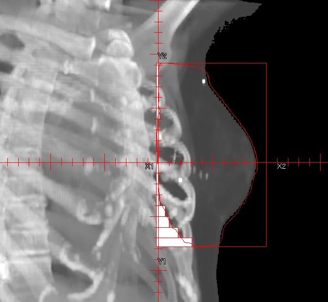 Anwendung der Halbfeld-Technik bei der einseitigen Mammabestrahlung zur Schonung des Lungenflügels und Herzens.