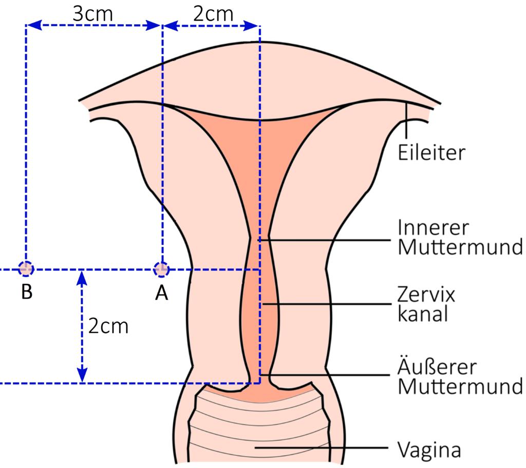 Dosierungsvorgaben für Zervix-Karzinome gemäß des Manchester-Systems mit den Hilfspunkten A und B.