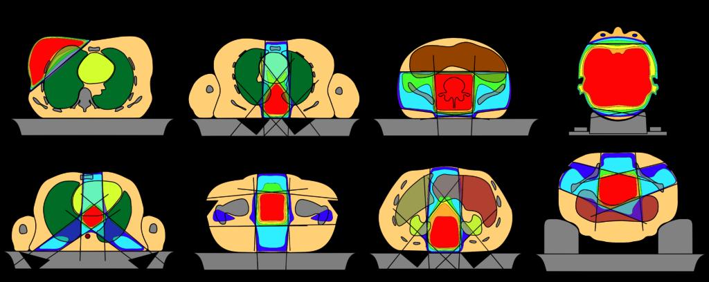 Standardfeldanordnungen und Dosisverteilungen bei konventioneller 3D-konformaler Bestrahlungstechnik.