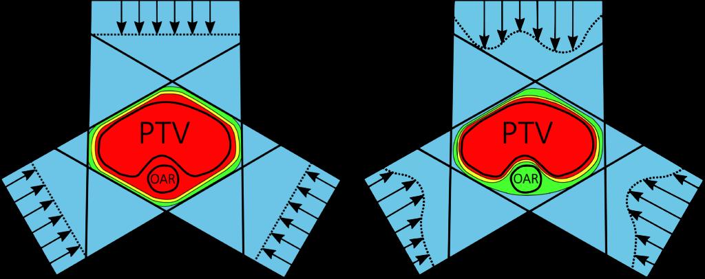 Optimierung der Dosisverteilung eines 3-Felder Plans mithilfe intensitätsmodulierter Bestrahlugnstechniken.