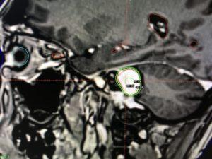 Gamma-Knife - Dosisverteilung - Sagittale Ansicht