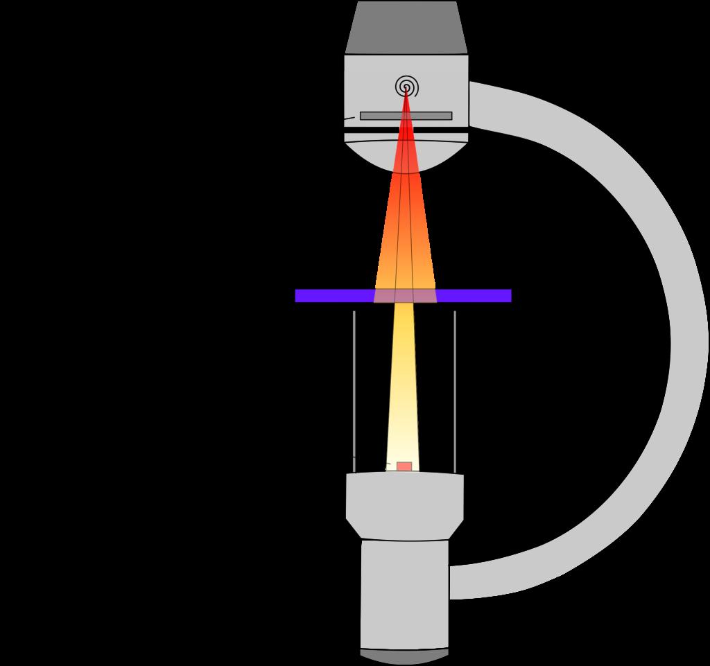 Messaufbau zur Bestimmung des Aluminium-Gleichwerts nach DIN 61331-1 - Schematische Skizze