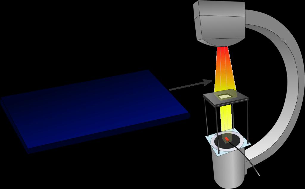 Messaufbau zur Bestimmung des Aluminium-Gleichwerts nach DIN 61331-1.