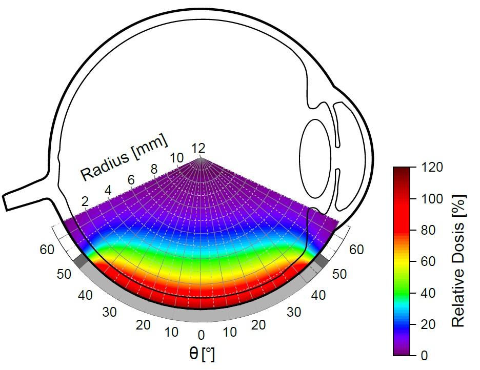 Dosisquerverteilung eines simulierten CCB-Applikators mit eingezeichnetem Auge und Applikator.