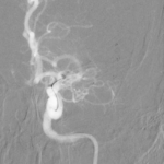Neuroradiologie - Thrombektomie bei M1-Verschluss