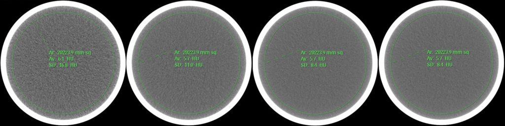 Rauschen in einem homogenen QA-Phantom in Abhängigkeit vom Strom-Zeit-Produkt. Von links nach rechts: 30 mAs, 75 mAs, 140 mAs, 200 mAs.