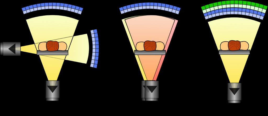 Schematische Darstellung der Funktionsprinzipien der unterschiedlichen DECT-Typen.