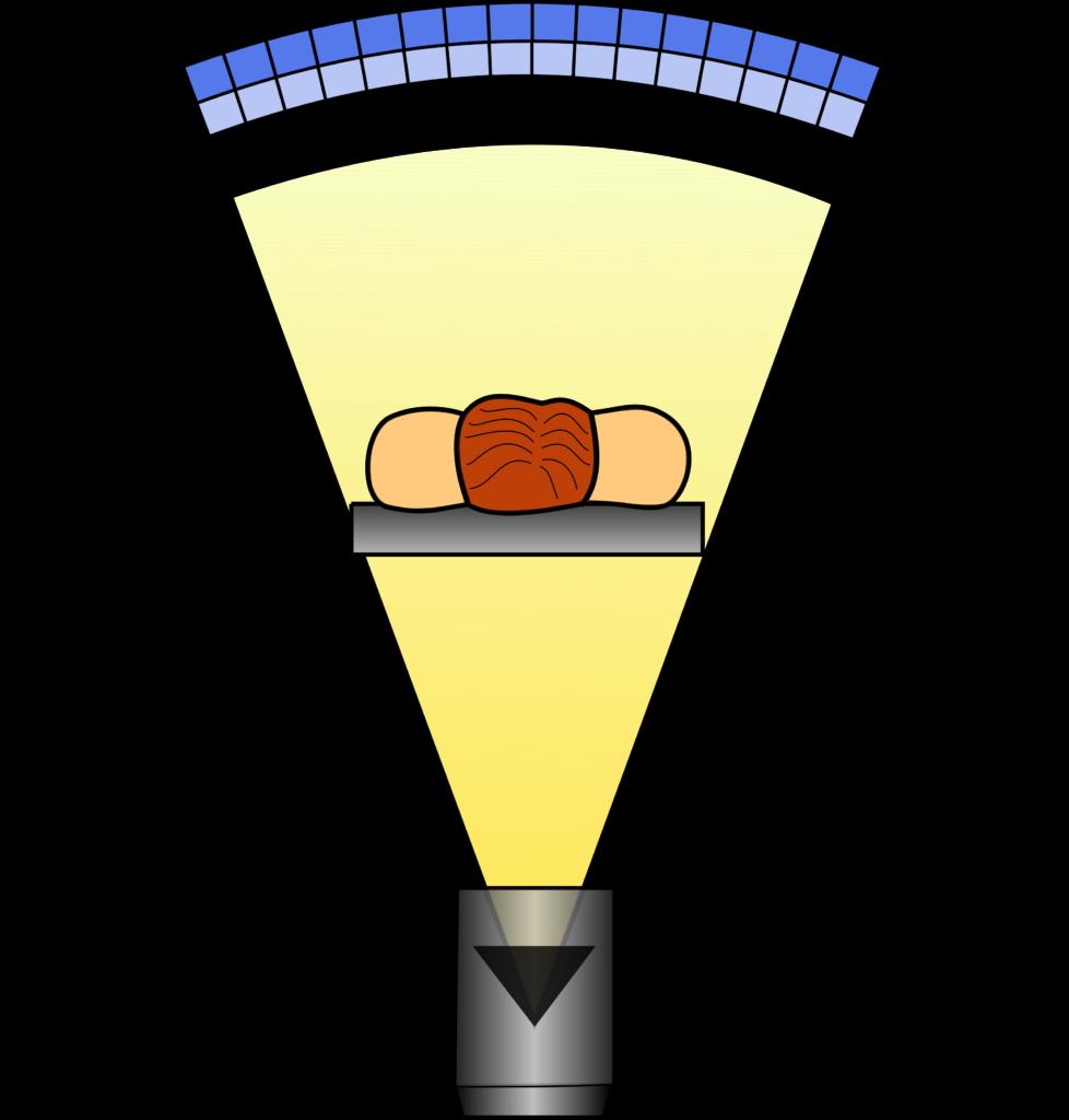 Schematische Darstellung des Funktionsprinzips eines Computertomographen der dritten Generation: Die Röntgenröhre und die Detektoren rotieren um den Patienten, während dieser auf dem Tisch langsam durch die Gantry geschoben wird.