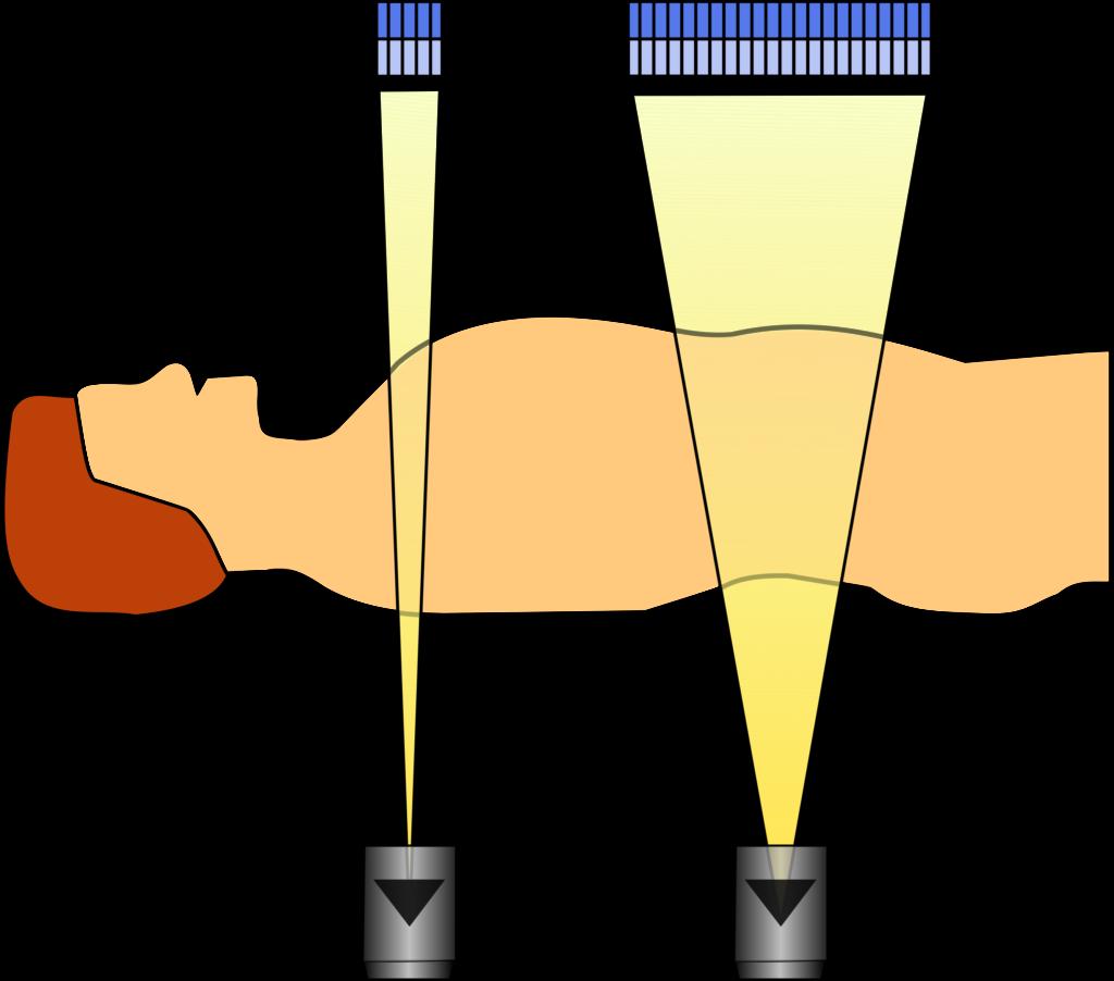 Schematische Darstellung der Strahlauffächerung in z- bzw. Patientenrichtung für zwei unterschiedliche Anzahlen an Detektorzeilen.