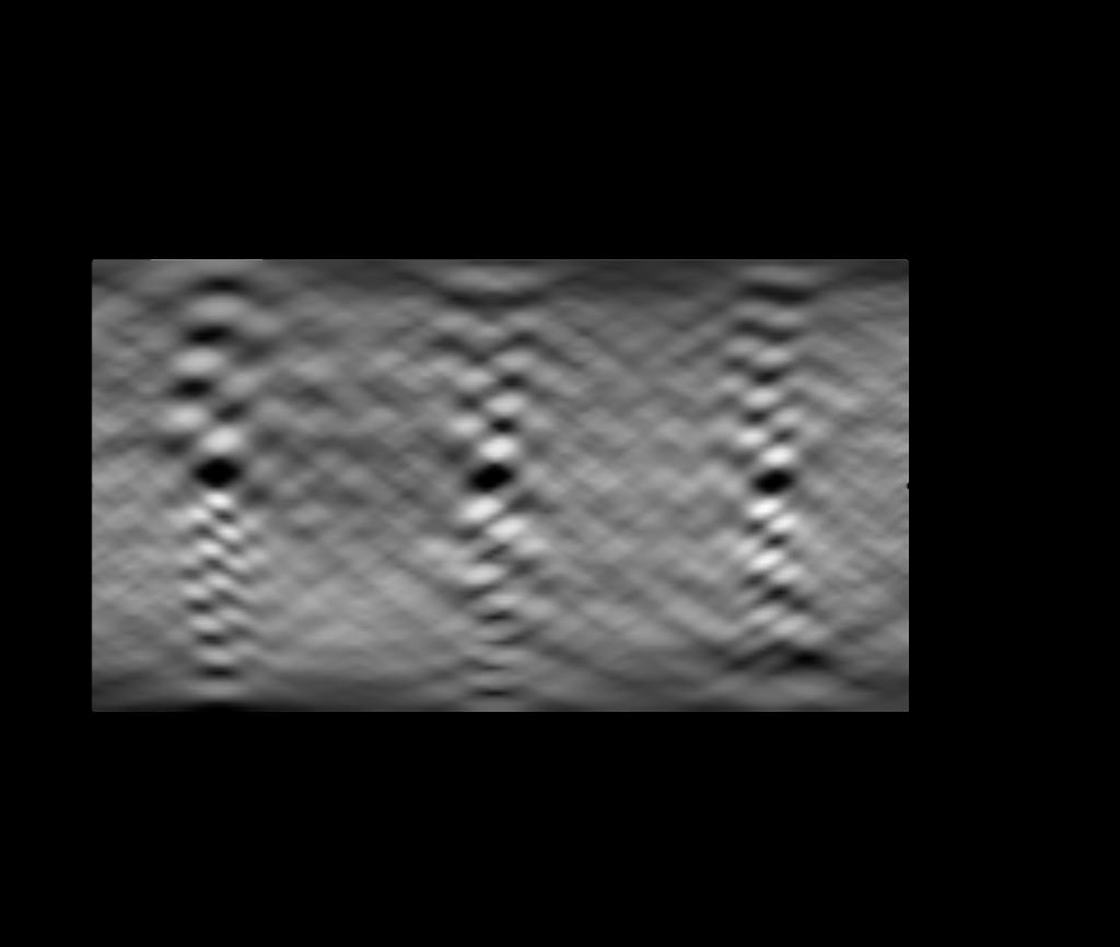 """Die Darstellung der Intensitätsprofile in einem <span class=""""wp-katex-eq"""" data-display=""""false"""">θ</span>-<span class=""""wp-katex-eq"""" data-display=""""false"""">t</span>-Diagramm ergibt die 2D-Radontransformierte, auch Sinogramm genannt. Hier beispielhaft das Sinogramm eines Hot Sphere Phantoms von Franck P. Vidal (Fpvidal, Wikipedia)."""