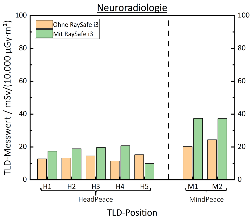 RaySafe-i3 Neuroradiologie Graph