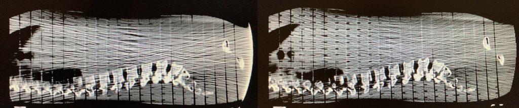 Erzeugung eines Trunkationsartefakt in einer Transversalschicht, indem ein Alderson-Phantom quer gescannt wurde. Links: Artefakte am rechten Bildrand in Richtung des Phantoms, das außerhalb des Scan-Bereich liegt. Rechts: Ergebnis nach der finalen Rekonstruktion ohne Trunkationsartefakt mit übrig gebliebenen Streuartefakten.