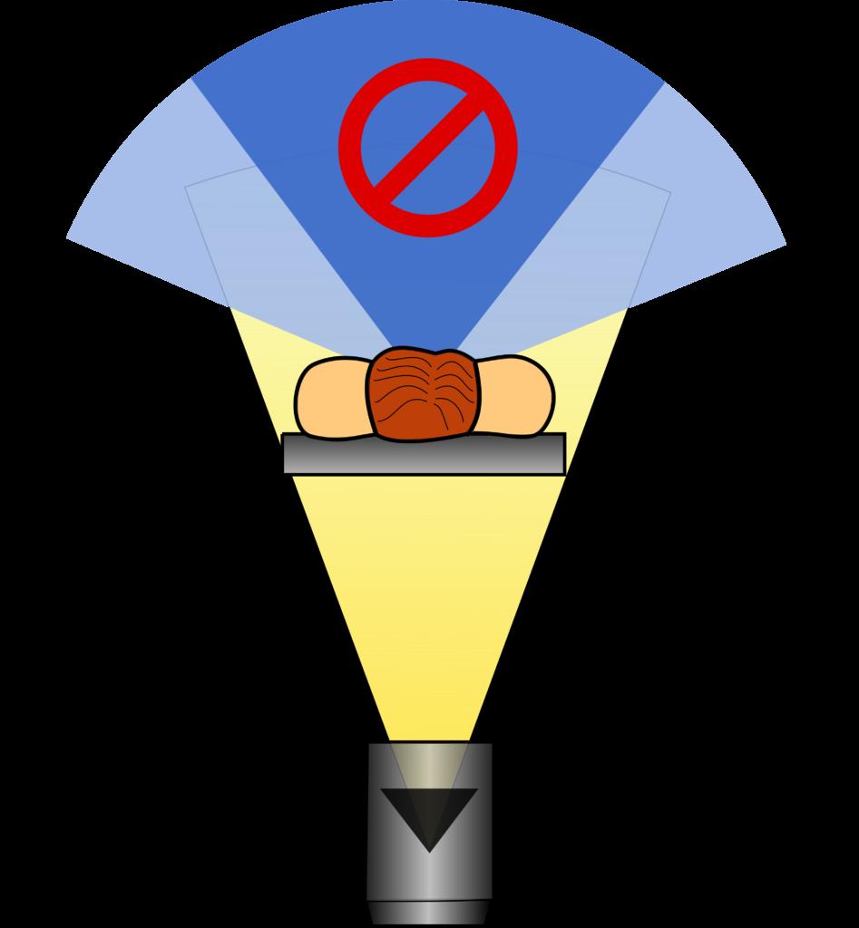 Schematische Darstellung der Organdosismodulation. Aus dem frontalen Winkelbereich trifft keine Strahlung auf den Patienten oder der Röhrenstrom wird reduziert, sodass oberflächennahe Organe geschont werden können. Für die Linsen reicht ein geringes Segment (dunkelblau), für die Brust oder die Schilddrüse wird ein größerer Winkelbereich benötigt.