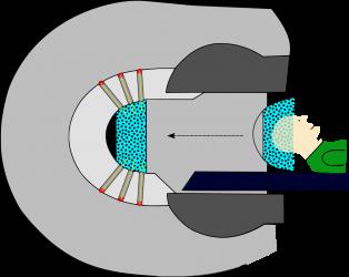 Schematische Darstellung des Gamma-Knife Modells C