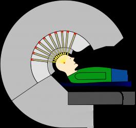 Schematische Darstellung des Gamma-Knife Modells U
